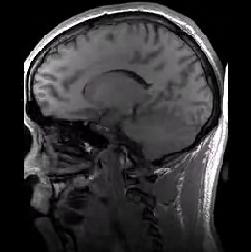 ארטיפקט התקפלות ב-MRI