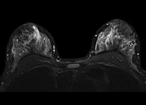 MRI שד