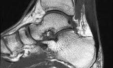 MRI קרסול