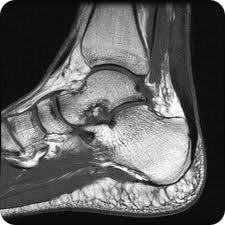 mri-ankle
