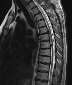MRI עמוד שדרה גבי